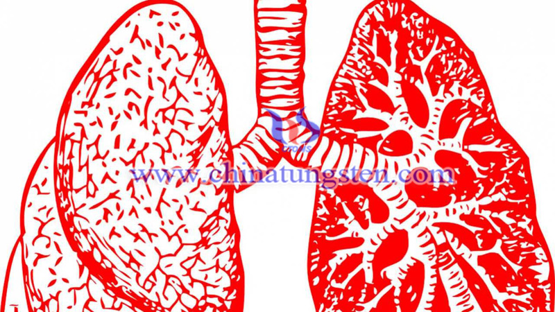 e-cigarette user may get tungsten and cobalt hard-metal lung disease image